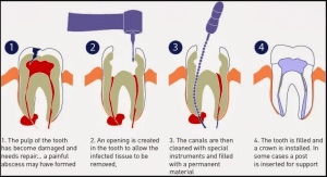 FAQs about Root Canal Treatment | Carrum Downs Dental