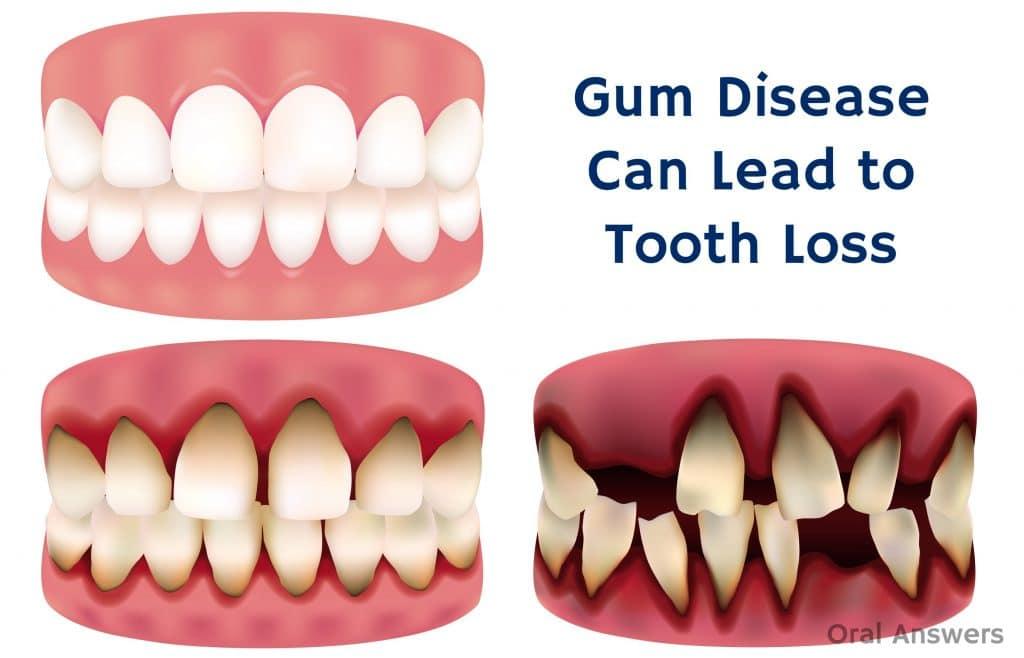 Teeth repair